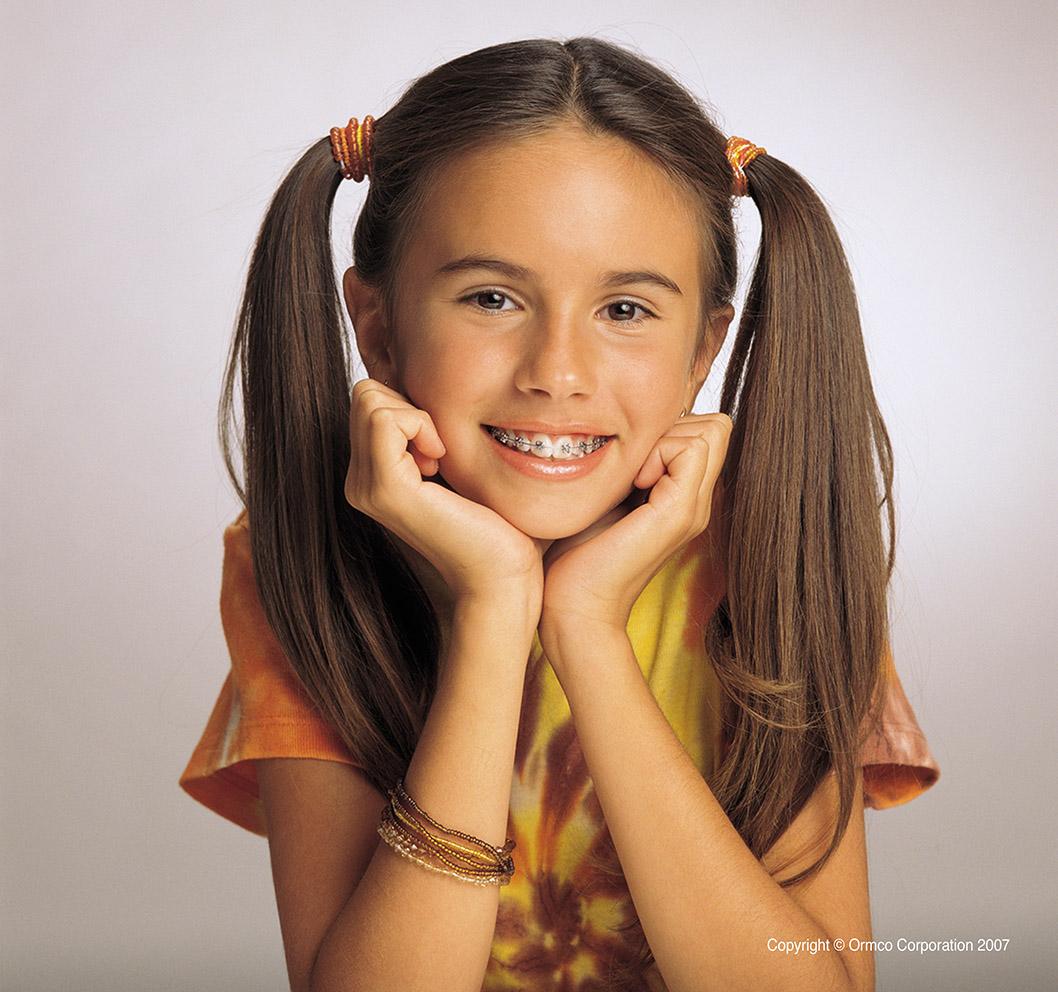 Ortodoncia niños Coruña Sistema Damon