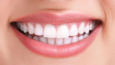 Diseñamos sonrisas Ortodoncia Bescansa Counotte Coruña