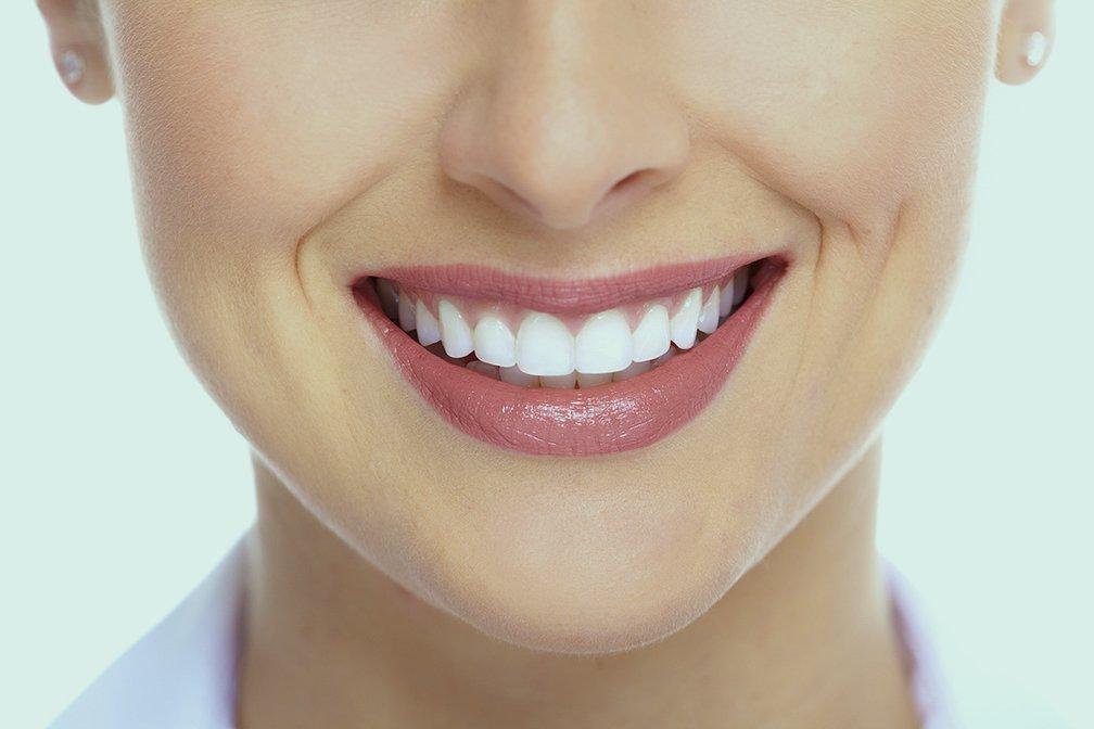 Sonrisas Coruña Ortodoncia